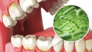 歯周病で腸内環境が悪化して大腸がんになるって本当なの?
